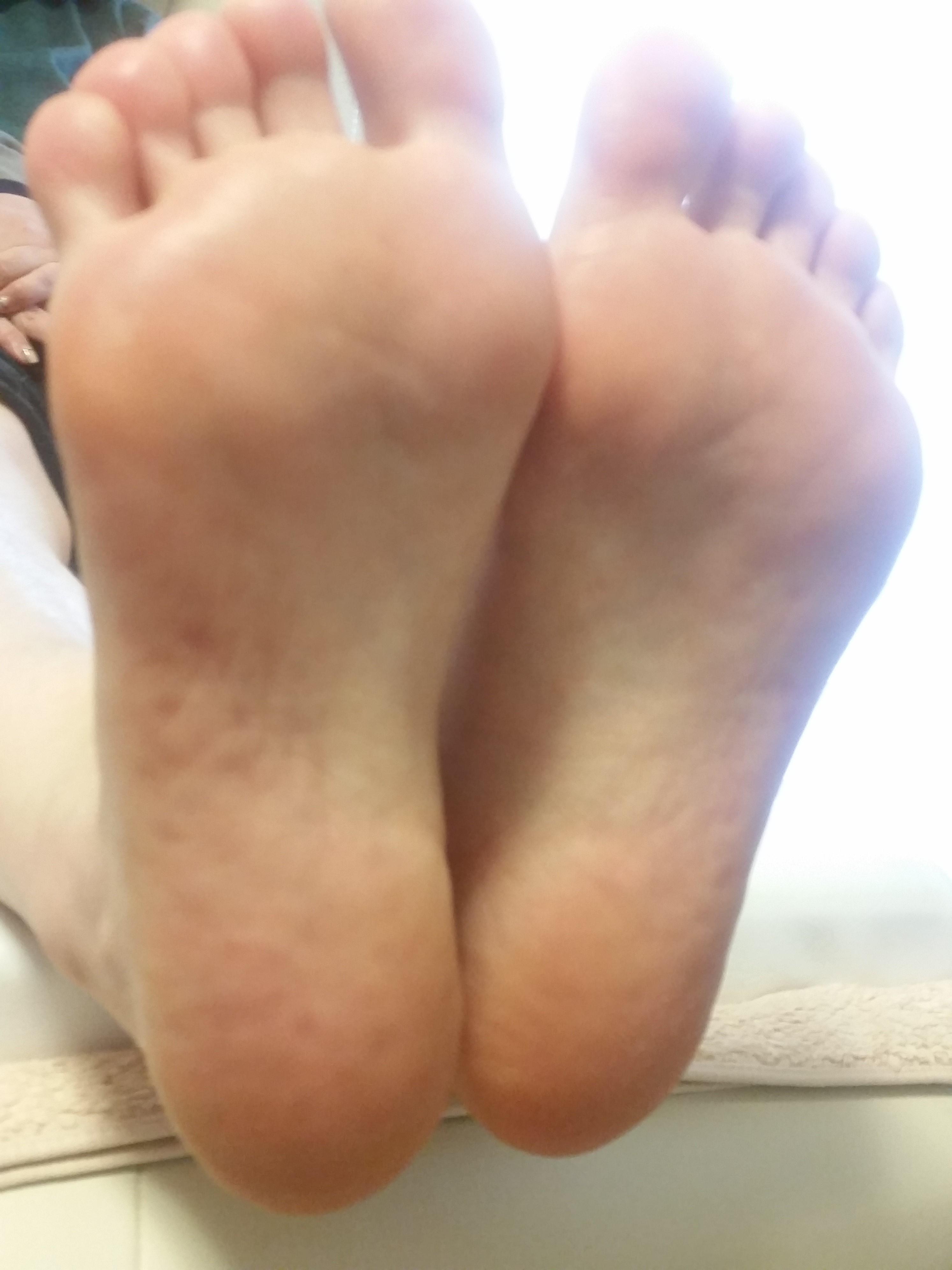 垢 足 の 臭い 爪